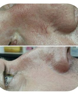 Capillaries & Spider Vein Removal